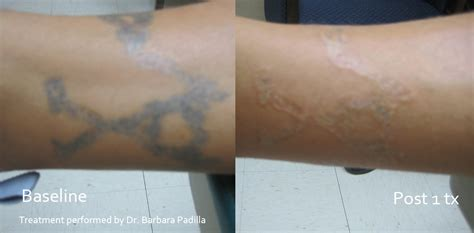laser tattoo removal ct