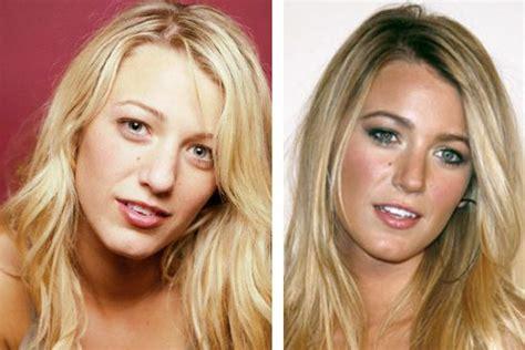 blake scarlett gisele and more celebs plastic surgery blake lively s nose job put her looks into orbit