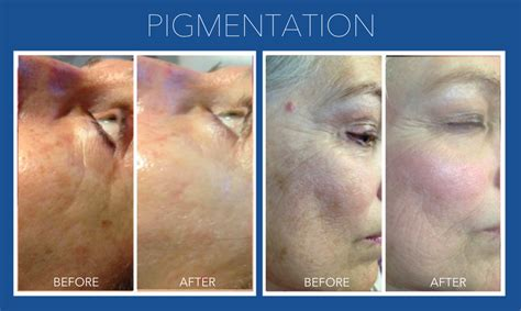 rejuvapen for neck before and after what is micro needling fast facts on the treatment for