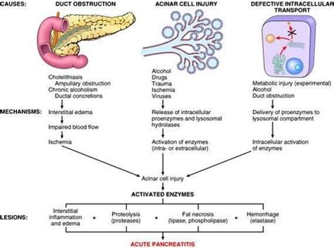 pancreatitis diagram acute pancreatitis discussion epomedicine
