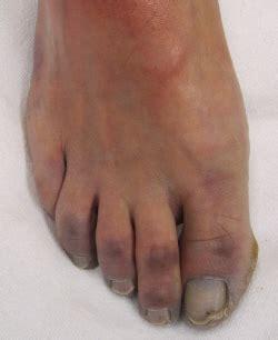several toenails look skin color under them foot pain blog