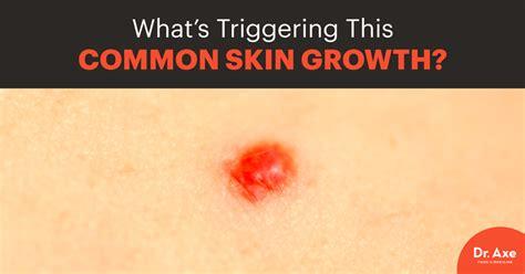 Cherry Angioma Detox by Cherry Hemangioma Nose Www Pixshark Images