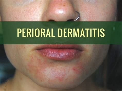 how to treat perioral dermatitis causes and care
