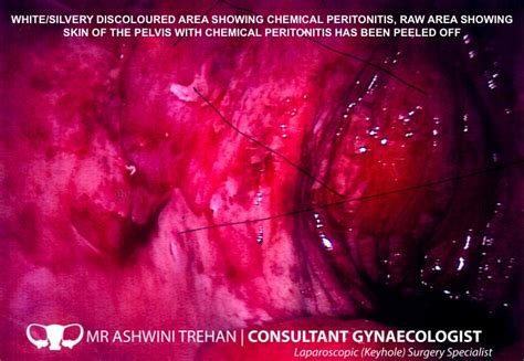 mr ashwini trehan consultant gynaecologist ovarian cyst removal laparoscopic keyhole surgery