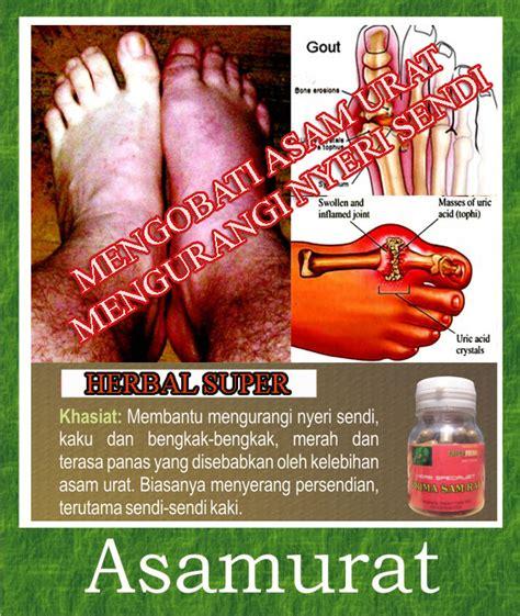 obat herbal tradisional asam urat  rematik sehat herba
