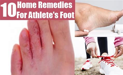 10 amazing home remedies for athlete s foot