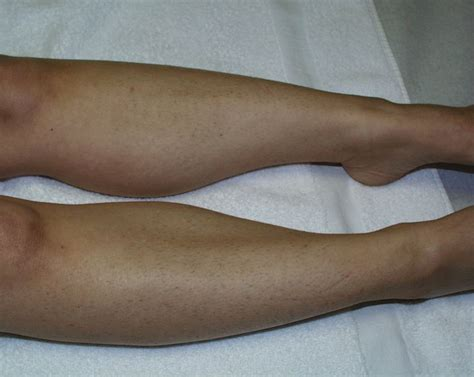 hair removal for legs laser hair removal in orlando for legs laser centers of florida hair removal center
