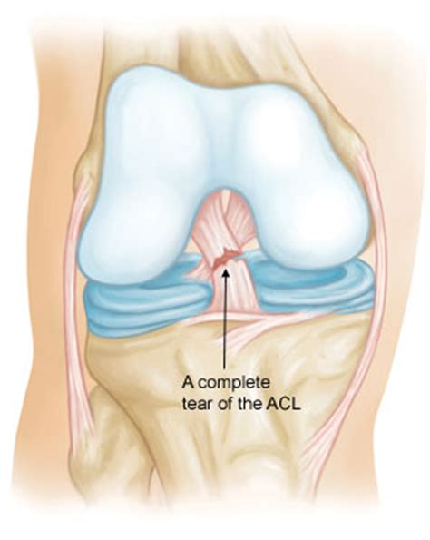 torn acl symptoms acl injuries search engine at search