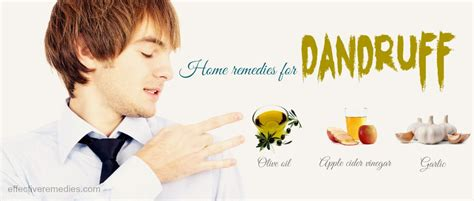 best cure for dandruff 23 home remedies for dandruff in winter