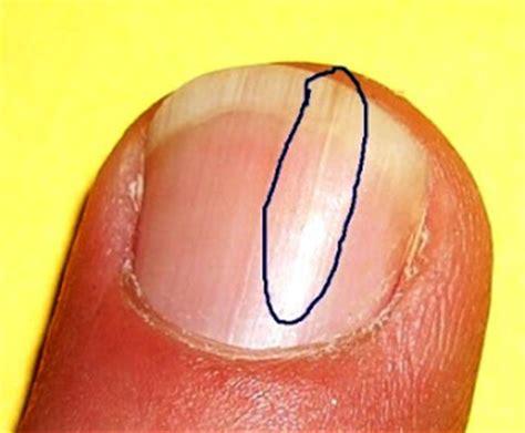 split nail palmistry and analysis splitting fingernails