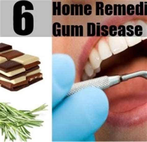 5 herbal remedies for gum diseases gum diseases