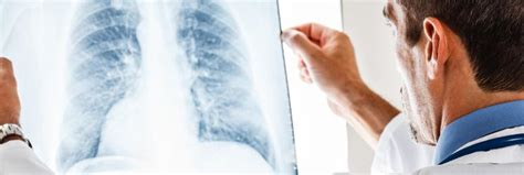 air purifiers for bronchitis relief how they airpurifiers