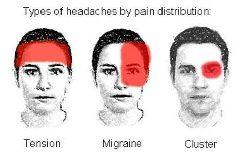 Why Do You Get Headaches When You Detox by Migraine Zanjabee Integrative Medicine Primary Care