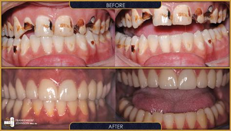 wichita dentists smile gallery frankenbery johnson