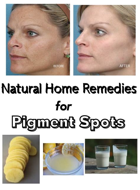 tattoo care home remedies natural home remedies for pigment spots skin care