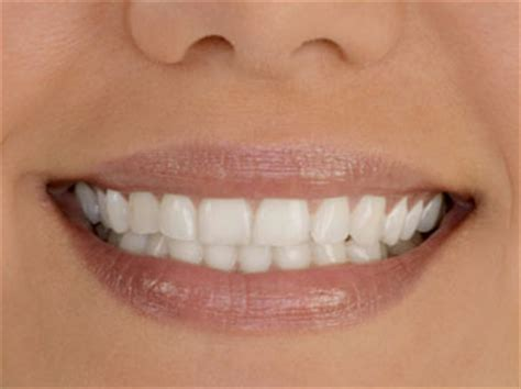 cosmetic dentistry liverpool