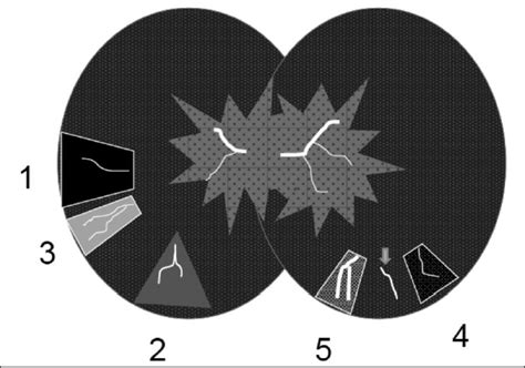 mosaic attenuation pattern hrct image gallery mosaic attenuation