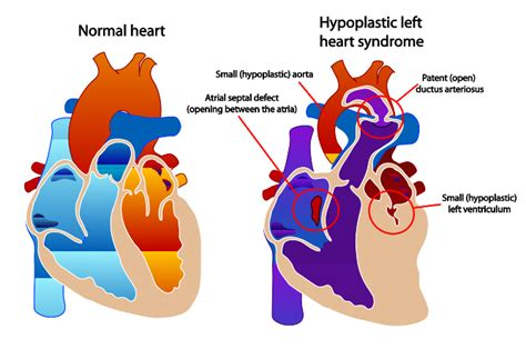 swinging heart syndrome hypoplastic left heart syndrome wiki everipedia