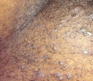 sleek and pubic hair and lifestyle and ingrown hairs ingrown pubic hair cyst infected hard lump bump get