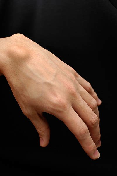 si鑒e v駘o avant ganglion cyst in wrist finger treatment and