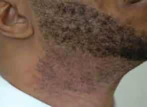 dark marks from ingrown hair laser hair removal for ingrown hairs