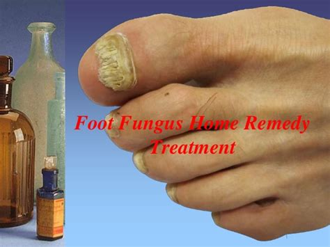 best treatment for foot fungus foot fungus home remedy treatment