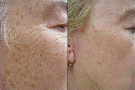 tattoo freckles calgary calgary laser vein laser hair laser hair removal tattoo