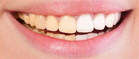 what color is your supposed to be teeth aren t supposed to be white study finds whitening