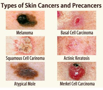 About My Skin Cancer by Skin Cancer Dermatologist In Bethesda Md