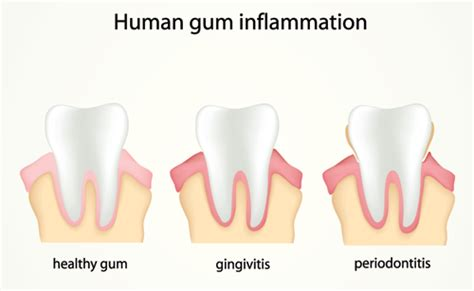 How Big Is The And Other Gum Questions by Is Periodontal Disease Contagious And Other Questions