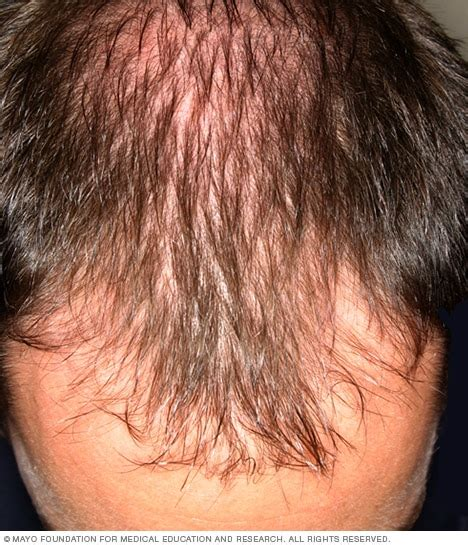 male hair loss pattern due to stress male pattern baldness mayo clinic