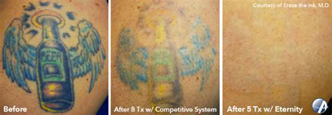 tattoo removal green ink q switched ruby laser astanza eternity laser