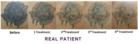 tattoo removal victorville in victorville face tattoo pictures to pin on pinterest