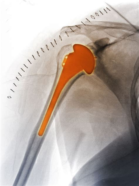 replacement shoulder information shoulder replacement surgery for arthritis