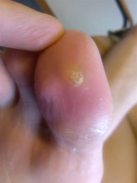 What Causes Planters Wart On Foot by Foot Warts Mosaic Wart Wart Treatments Treat Warts