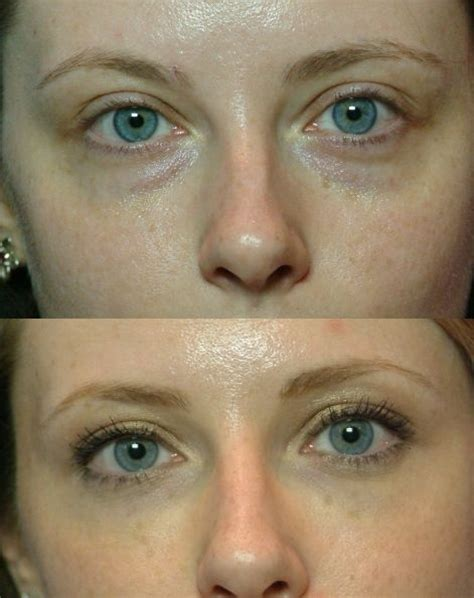 How Eye Circles Appear by 1000 Images About Cure Eye Bags With Stimulation