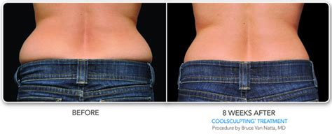 how much does a coolsculpting machine cost coolsculpting in san diego la jolla cosmetic surgery centre