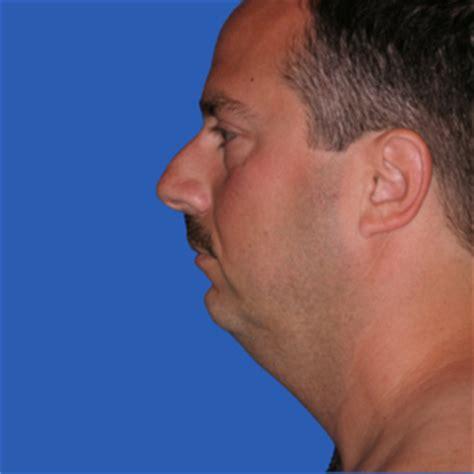 weak chin men why are weak chins so common