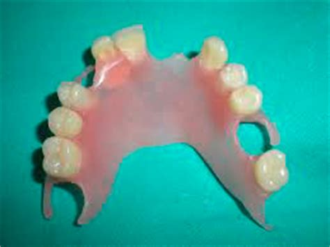tipi di protesi dentarie mobili protesi mobile parziale in resina cura della pelle