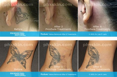 black ink tattoo removal before and after picosure laser removal removal