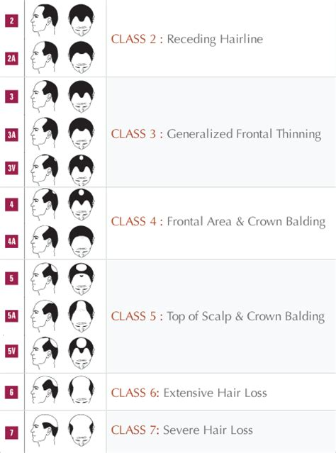 growth pattern classification mens hair growth chart trendy hairstyles in the usa