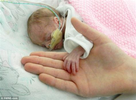 Three More Babies Born by Baby Born At Just 27 Weeks Defies Odds To Be