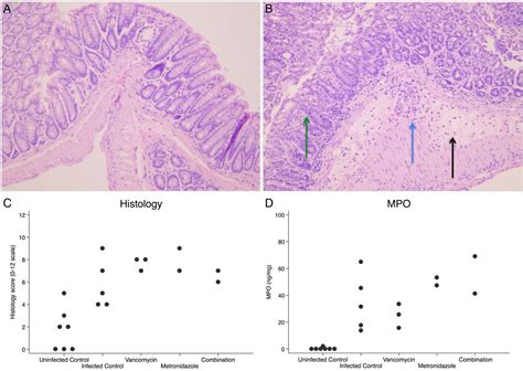New Oversize Top Green Lonely Figure Desain Sederhana Cantik 31361 Ai treatment of clostridium difficile infection in mice with vancomycin alone is as effective as