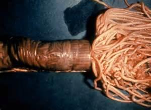 spulwurm im stuhl endoparasiten