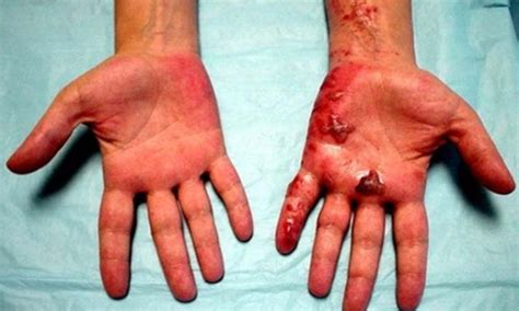 Relieve Burning Sensation In The And Palms With These Remedies And Personality Grooming by Arditor Diabetic Neuropathy