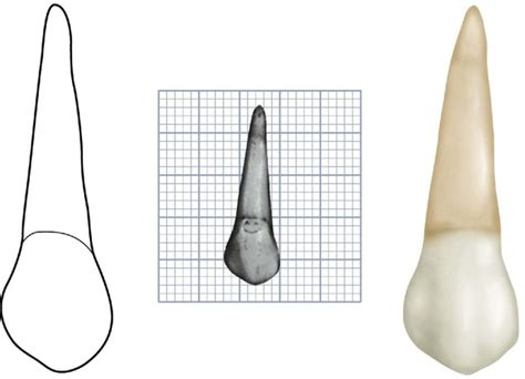 Maxillary Premolar 9 The Permanent Maxillary Premolars Pocket Dentistry