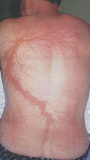 lightning tattoo scar 17 best images about lightning on tongue