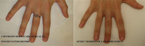 tattoo removal finger laser removal new york