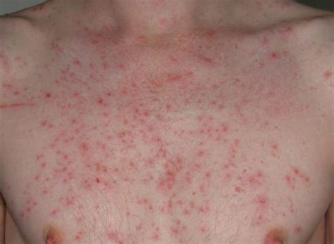 Hives And Detox ozone sauna detox rash at the in medicine with