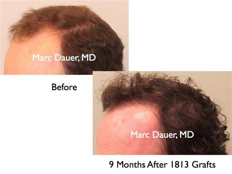 rolando model hair transplant testimonials reviews about california hair transplant us hair transplant male